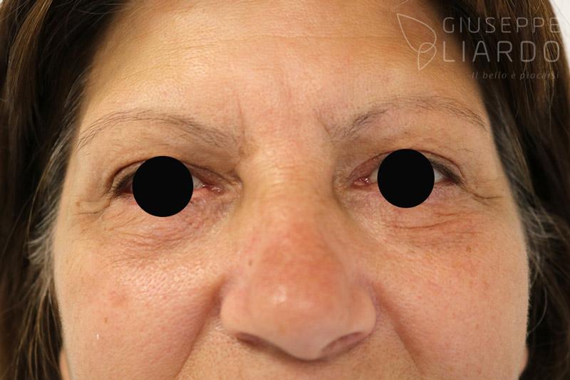 blefaroplastica-dopo-liardo