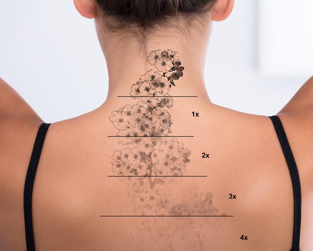 eliminazione-tatuaggi-catania
